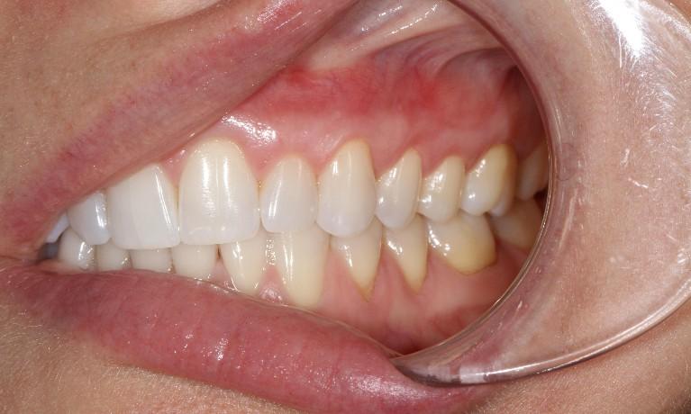 3 Common Questions about Pinhole Gum Grafts