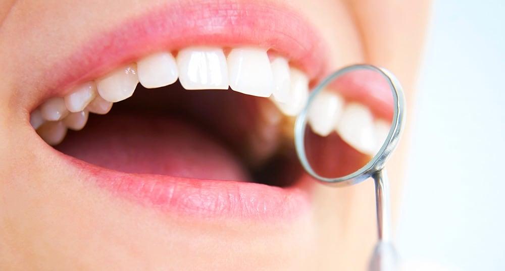 Dental Crowns & Bridges in Guelph