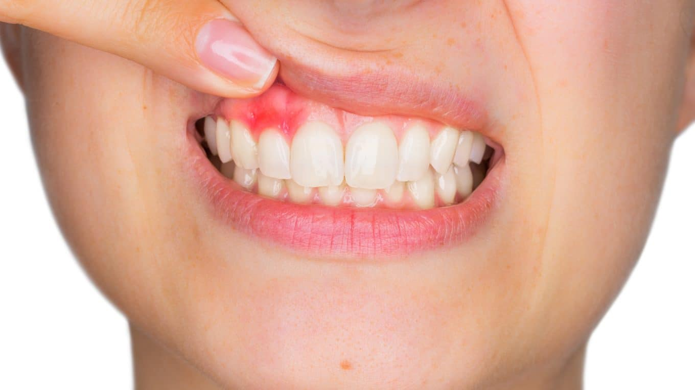 Are You Getting Periodontal Gum Surgery? Here's What to Expect from Your Recovery