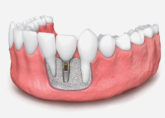 How Bone Grafting with a Cosmetic Dentist Can Help for Dental Implant Patients