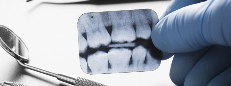What You Should Know About Dental X-Rays