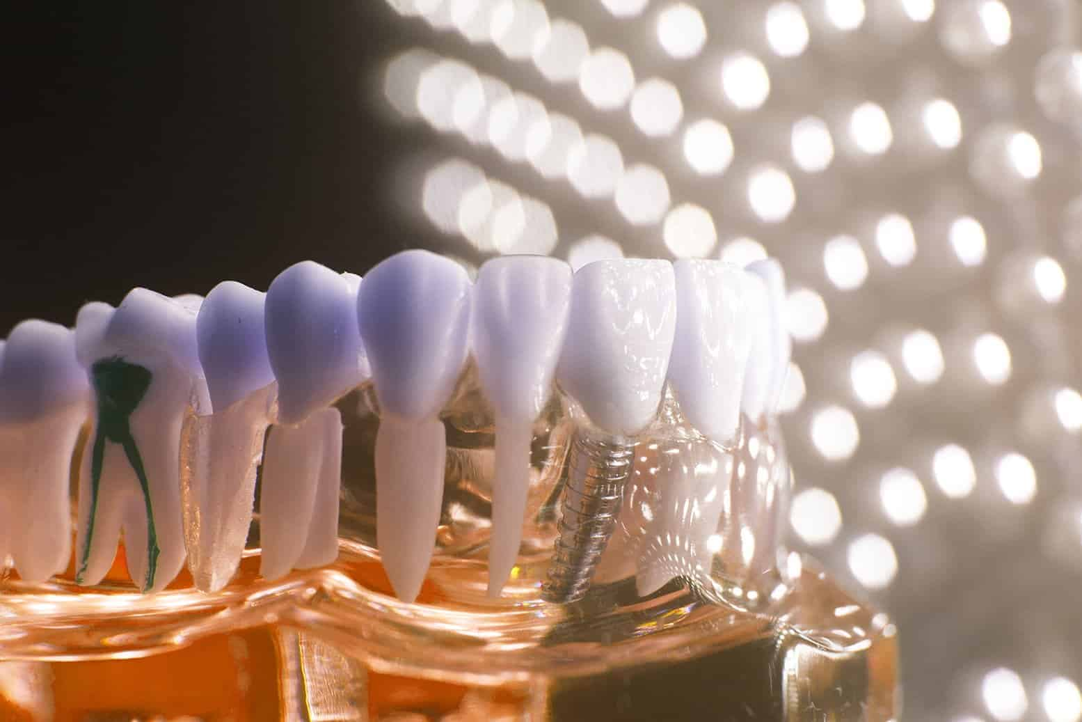 Four Reasons to Consider Single-Tooth Dental Implants