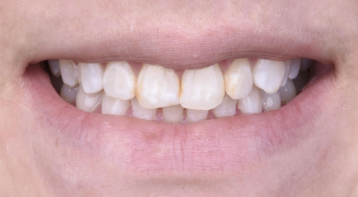 Emma Before Porcelain Veneers Dr. Mistry Dentistry