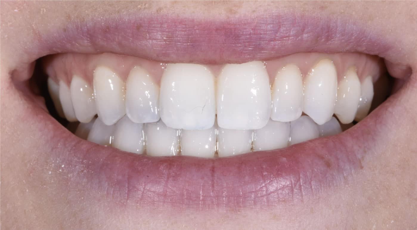 After Invisalign Dr. Mistry Dentistry