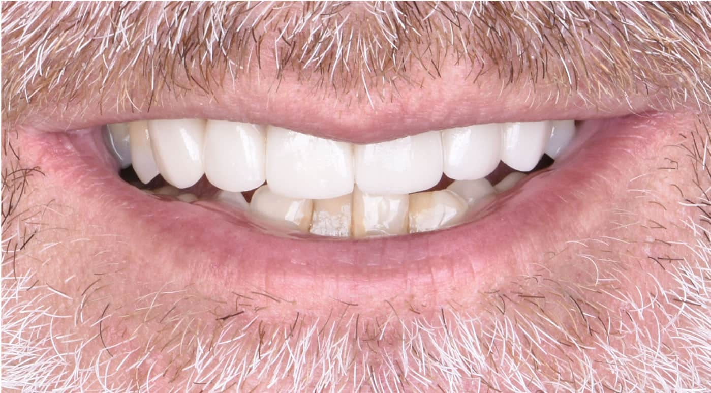Jeff After Porcelain Veneers Dr. Mistry Dentistry