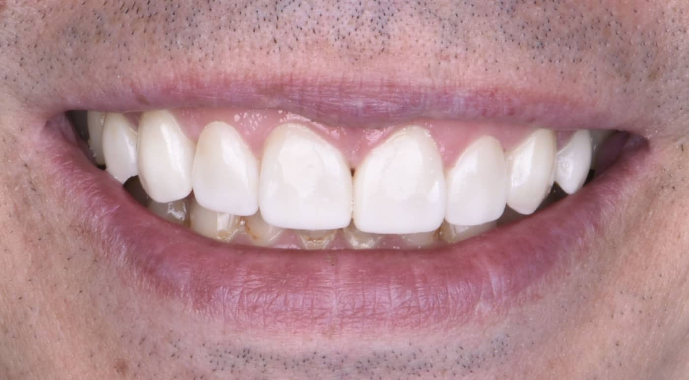 Ryan After Porcelain Veneers Dr. Mistry Dentistry