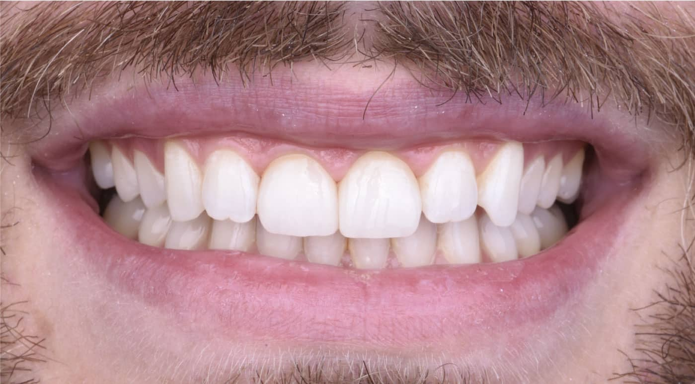 Steven After Porcelain Veneers Dr. Mistry Dentistry