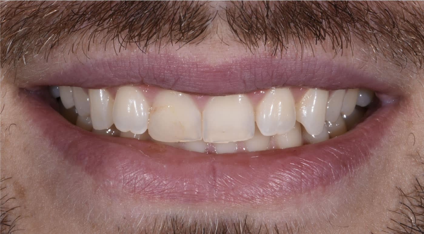 Steven Before Porcelain Veneers Dr. Mistry Dentistry
