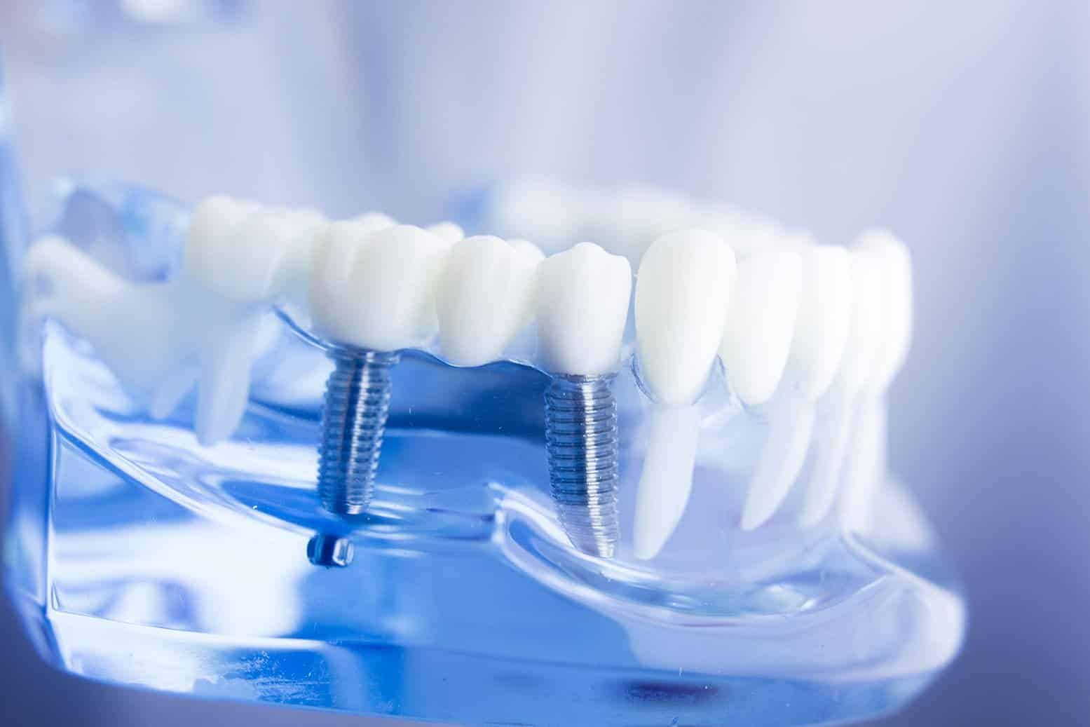Dental Implants in Guelph