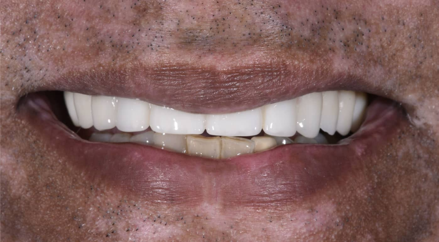 Jay All On Six Dental Implant After Photo