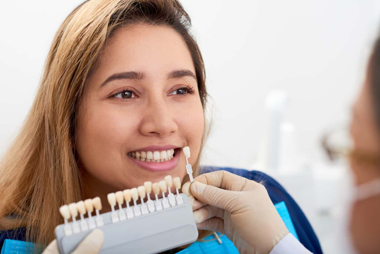 Can Dental Veneers Be Removed?